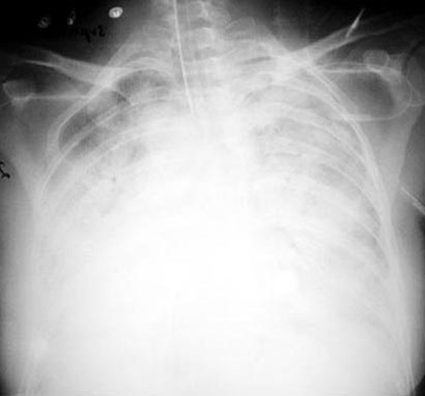 Diffuse Bilateral Lung Atelectasis Due To ARDS. There Is