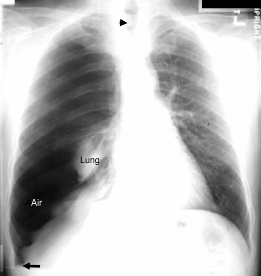 pneumothorax1_labelled, Cephalic Vein