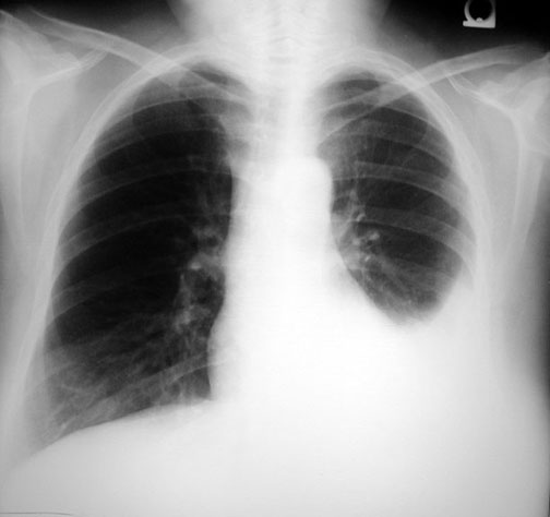 effusion note pleural effusion on left in the adjacent cxr