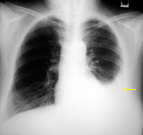 What are the types of fluid that can accumulate in pleural ...