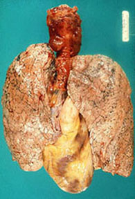 Normal lungs.