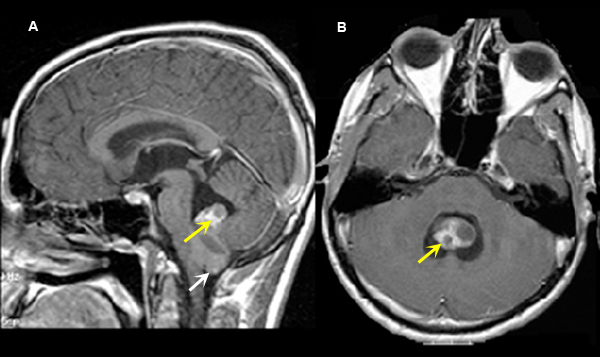 Ependymoma In Adults 18