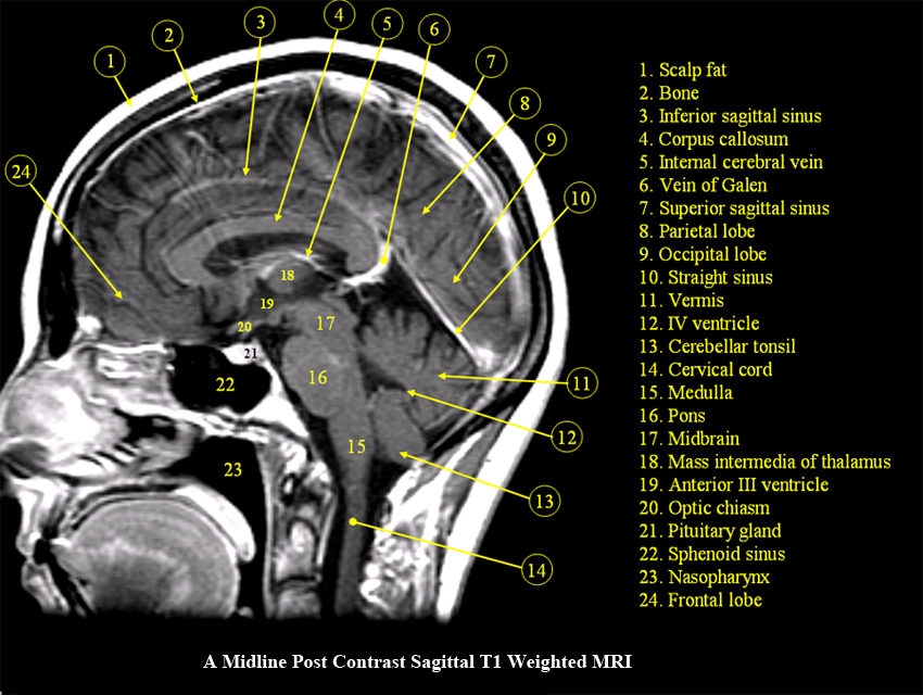 Anatomy basal ganglia