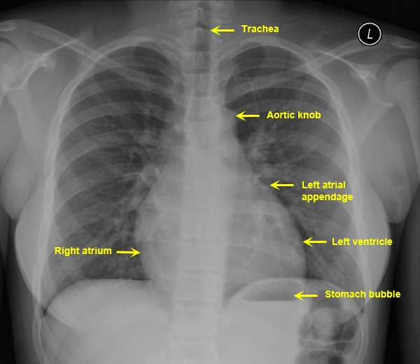 heart x ray images